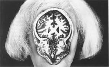 A black and white photograph of a woman's head with an MRI scan of the skull and brain covering her face.